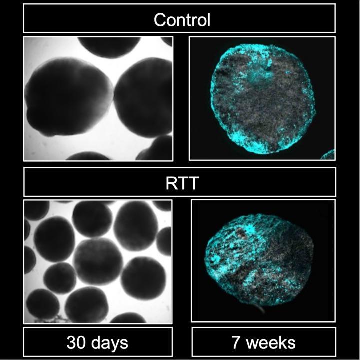 Patient derived 3D brain organoid