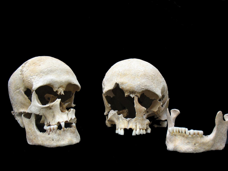 Ancient Plague Victims