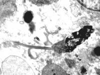 Naked Mole Rat (<I>Heterocephalus glaber</I>) Sperm