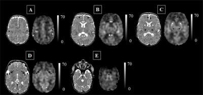 Figure 1: Cerebral Blood Flow Maps