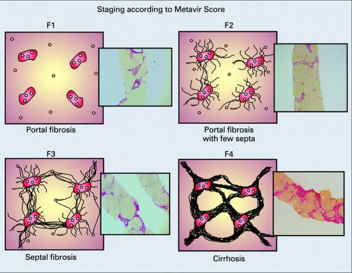 Stages of Fibrosis