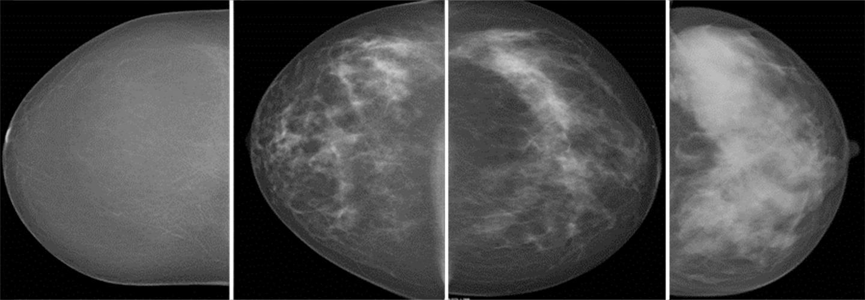 Mammograms Showing Volumetric Breast Density
