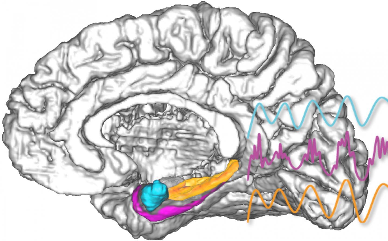 Brain with EPhys