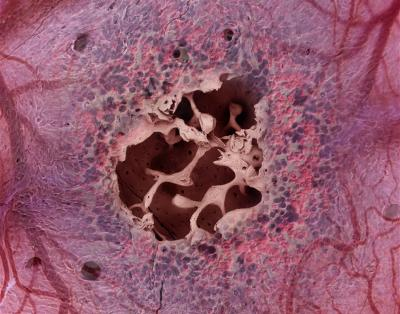 Bone Marrow Rendering