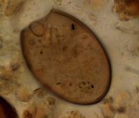 Microscopic Fish Tapeworm Egg from the Medieval Latrine at Riga