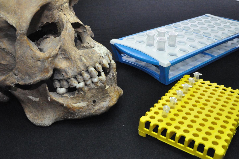 Skull and Test Tubes