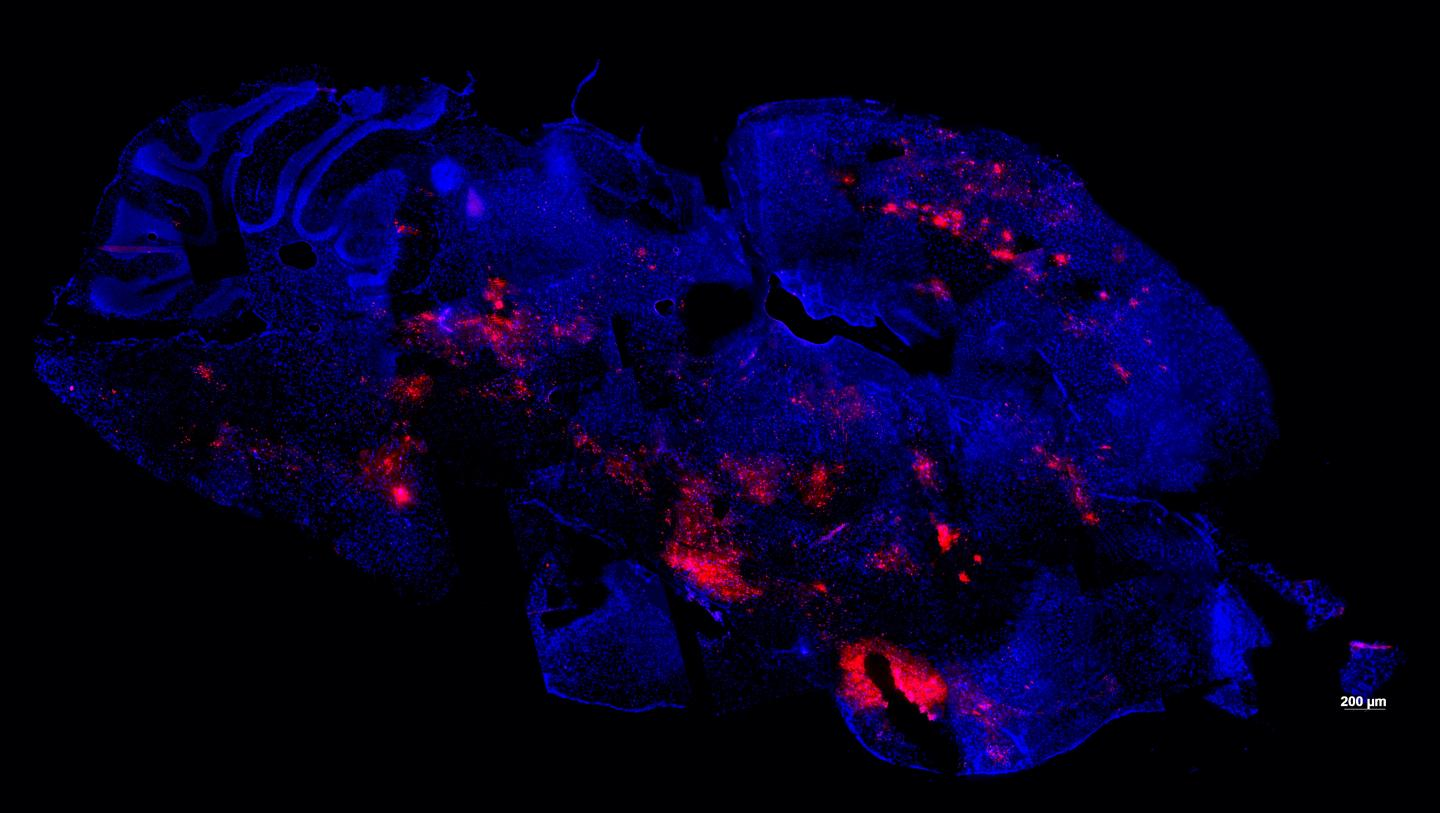 Mouse Brain Infected by Virus