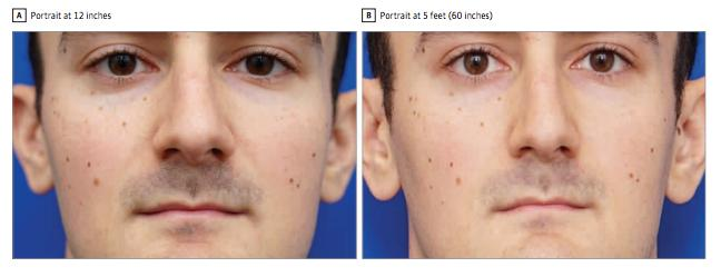 Example of Nasal Size Distortion in a Short-Distance Photograph and Derived Model