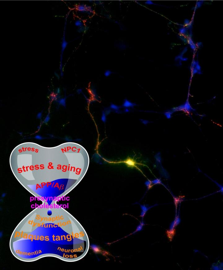 New Theory on Alzheimer's, Amyloid Connection