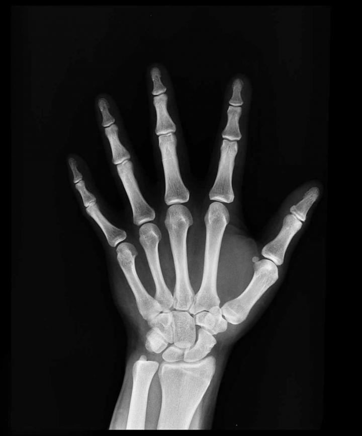 15,000 Spaniards May Unknowingly Have Hypophosphatasia Bone Disease