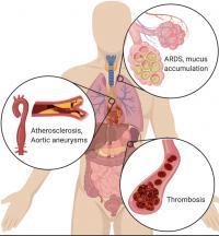 NETs  Body Diagram