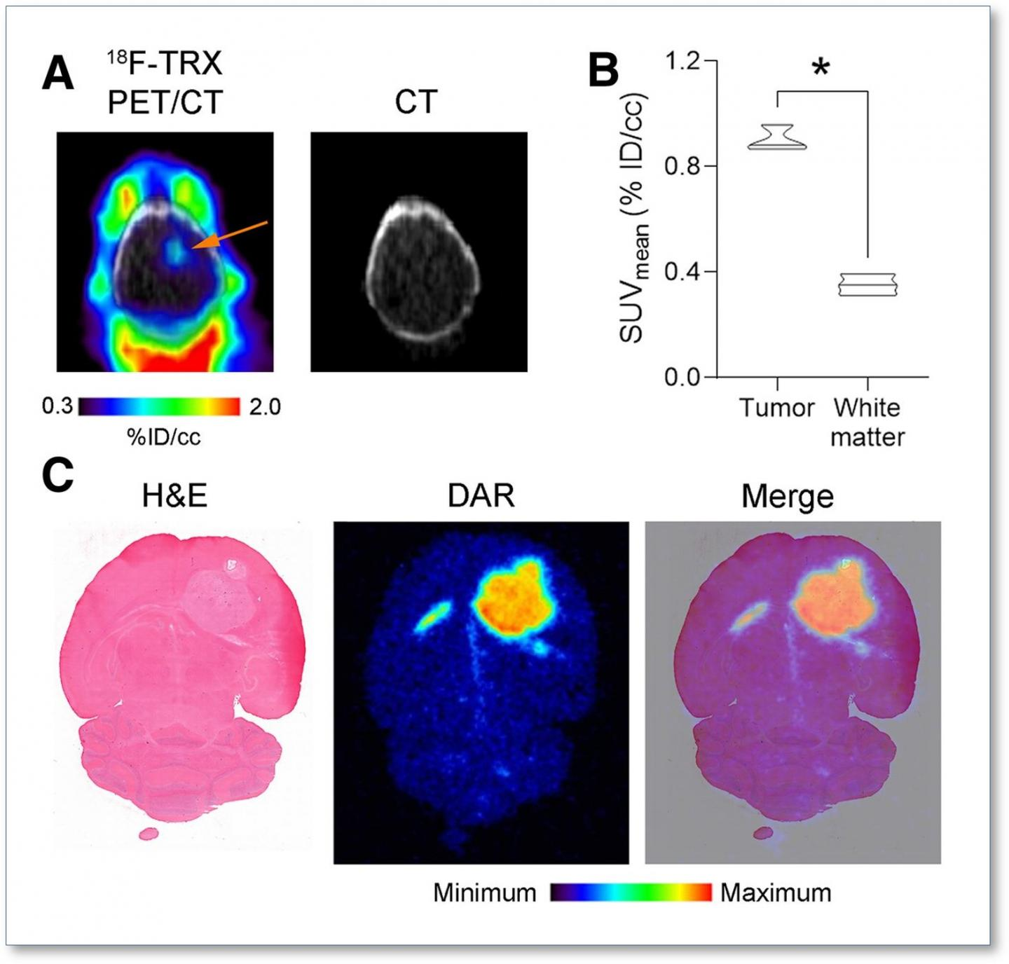 LIP expansion is detectable in an orthotopic glioma model with F-18 TRX.