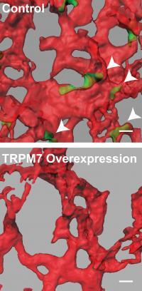 TRPM7 versus control
