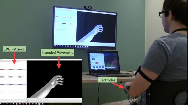 Phantom Movements in Augmented Reality Helps Patients with Chronic Intractable Phantom Limb Pain