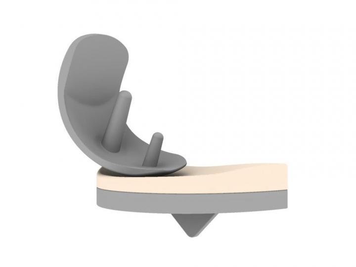 Implant Design