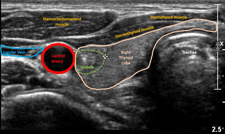 Ultrasound Image of Thyroid Nodule