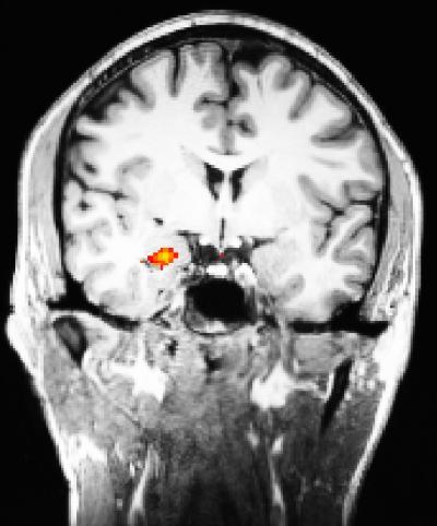 Meditation Reduces Amygdala Activation