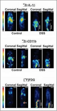 18F-FDG PET Detection of Colonic Inflammation