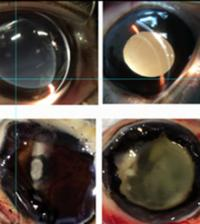New Hydrogel (left) and Conventional Gel (right) Administered to Rabbits' Eyes