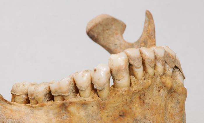 Ancient dental calculus