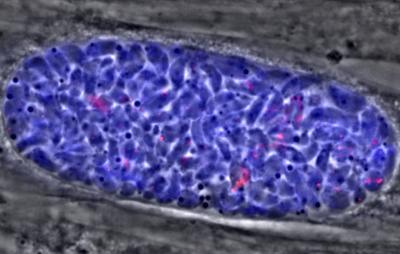 <em>Toxoplasma</em> Cyst Showing Dormant Parasite