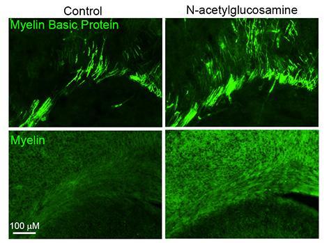 N-acetylglucosamine promotes primary myelination.