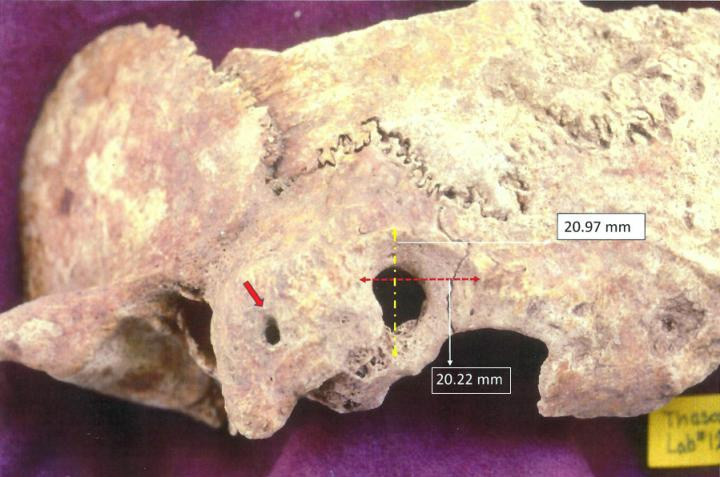 Ectocranial View of Palaeopathological Specimen