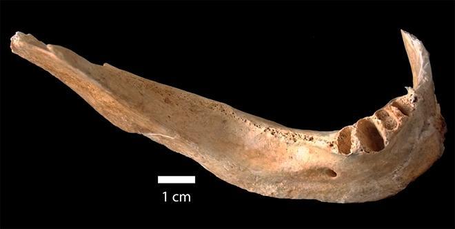 Jawbone from Victim of Hiroshima Bombing