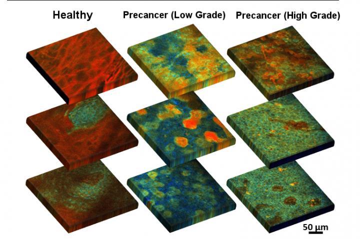 Visualizing Metabolism in Precancerous Tissue