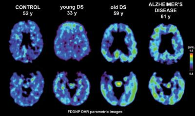 PET-FDDNP Brain Scans