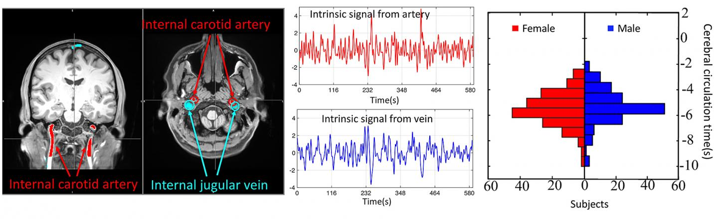 Imaging Technology Detects and Monitors Cerebral Vascular Disorders, Injuries in Brain