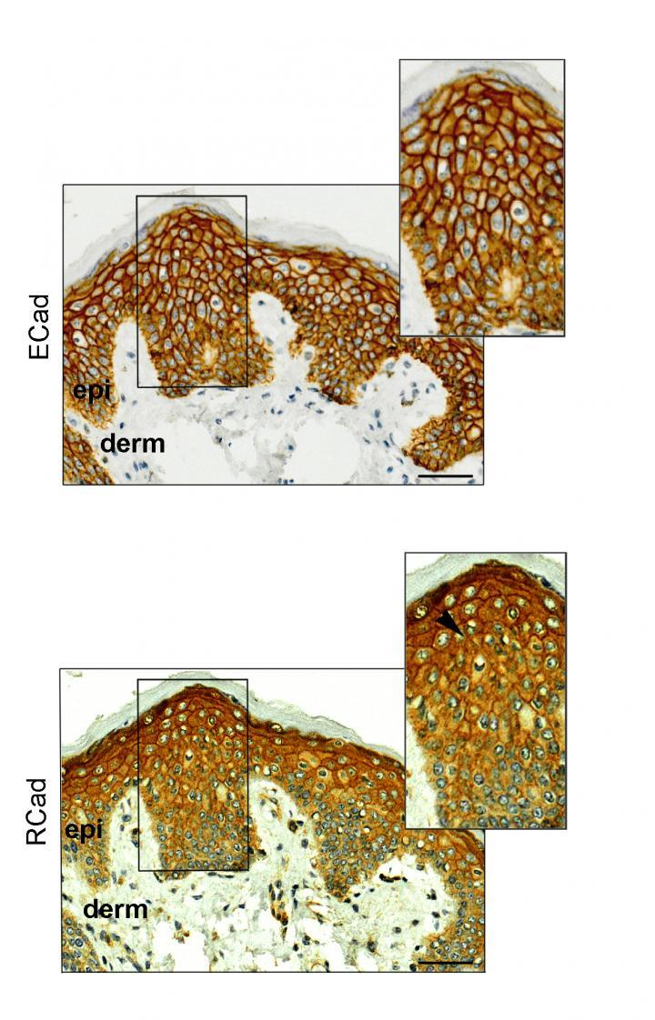 E-caderina y R-caderina en cáncer de mama