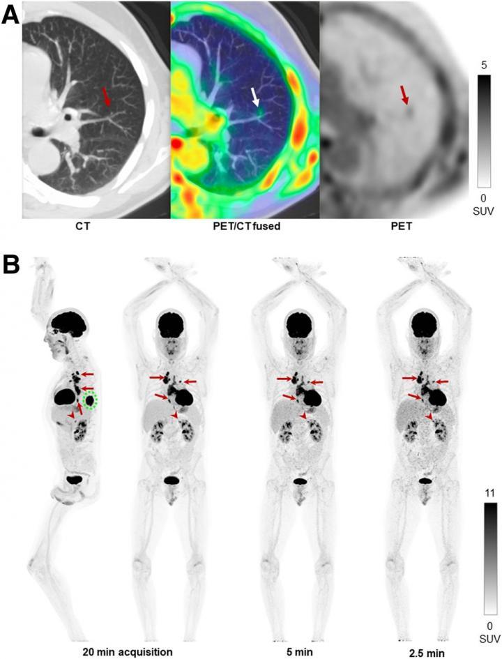 Human imaging examples of performance of uEXPLORER total-body PET scanner.