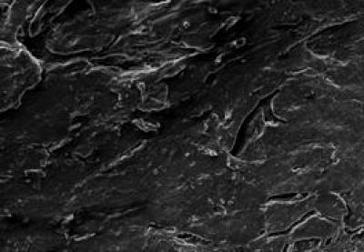 Nerve Fibers Were Poorly Arranged