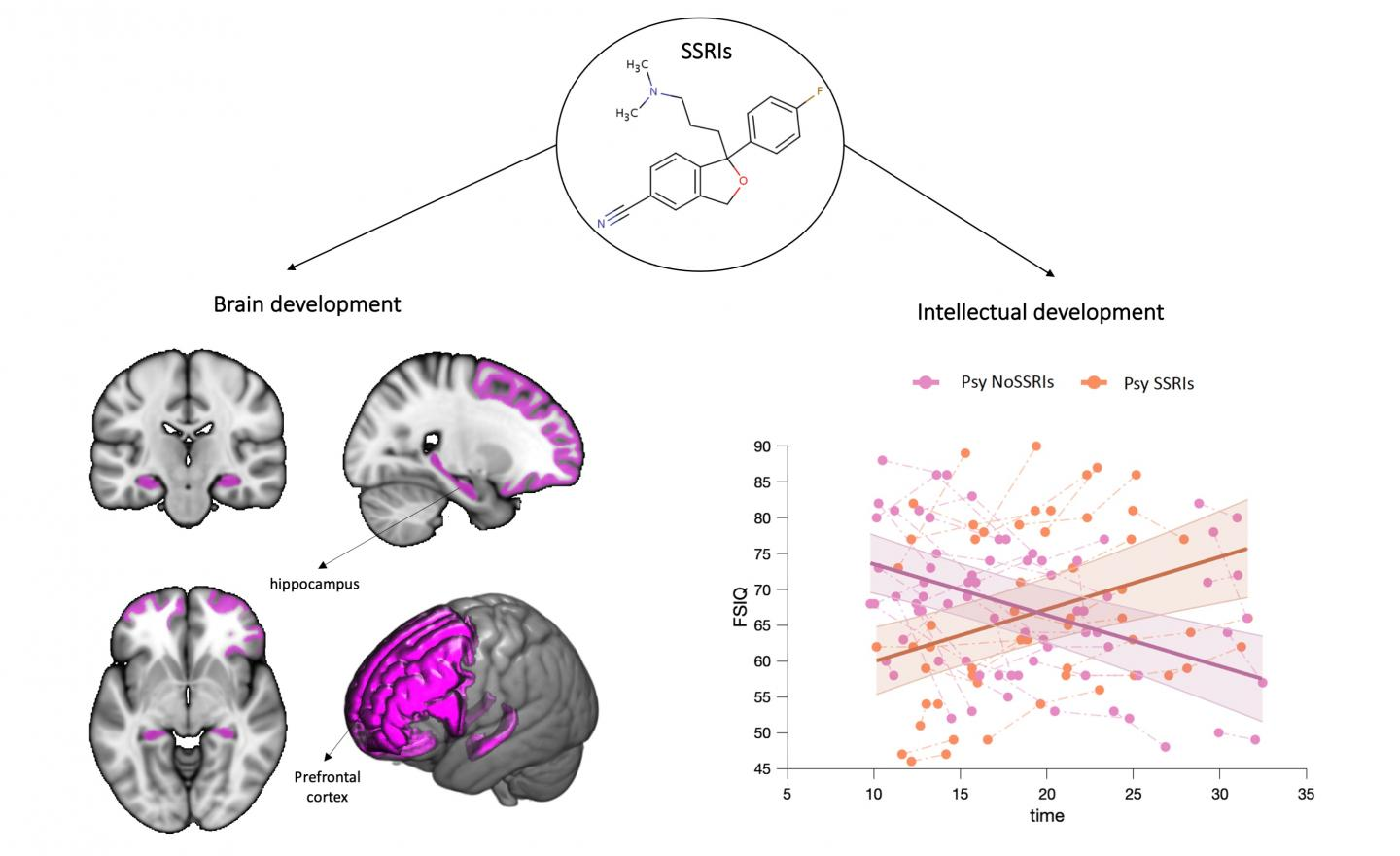 Effects of SSRIs on brain and intellectual development.