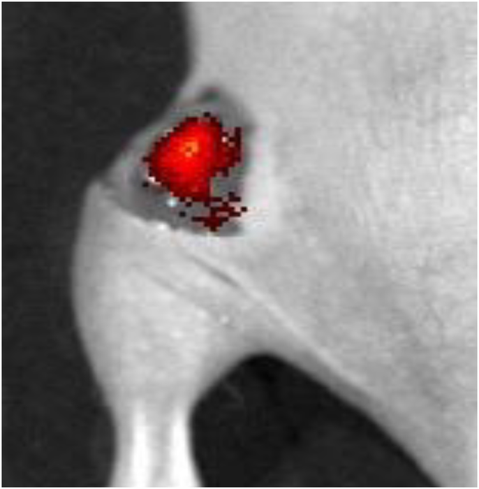 Fluorescent spray lights up tumors for easy detection during surgery