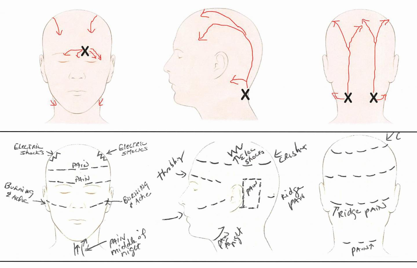 Patient Pain Sketches Can Predict Surgical Outcomes in Trigger-Site Deactivation Surgery for Headaches