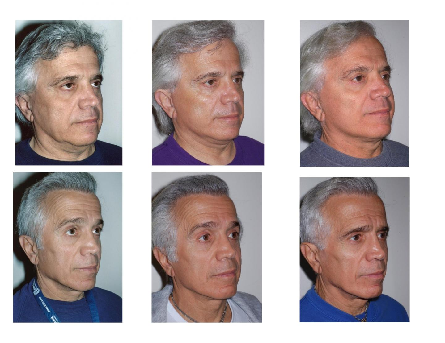 Male Twin Face Lifts -- Pre Op and Post Op