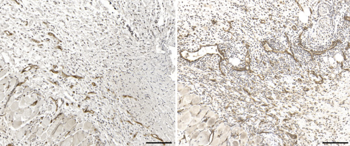 Immunohistochemical imaging of blood vessels in skin lesions during bacterial infection