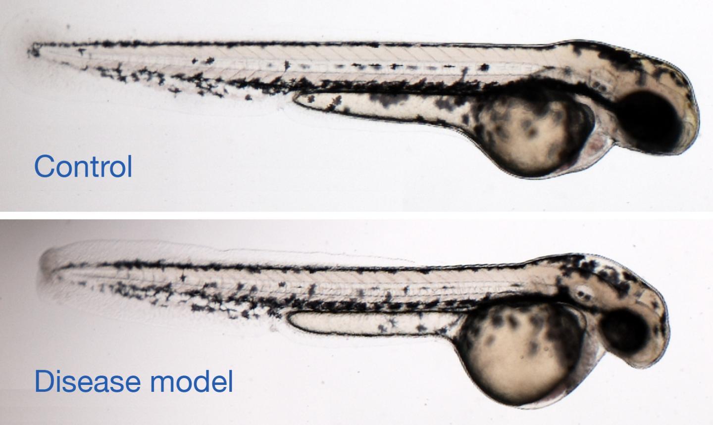 Zebrafish Microcephaly