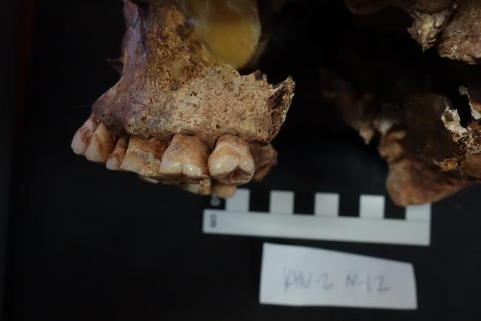 Sampled upper jaw