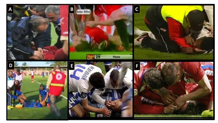 The Wrong First Step to Revive Athletes in Cardiac Arrest