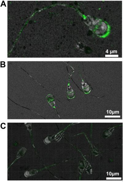 TMEM95 Protein (2 of 2)