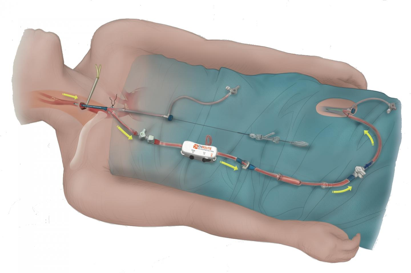 ENROUTE® Transcarotid Neuroprotection and Stent System