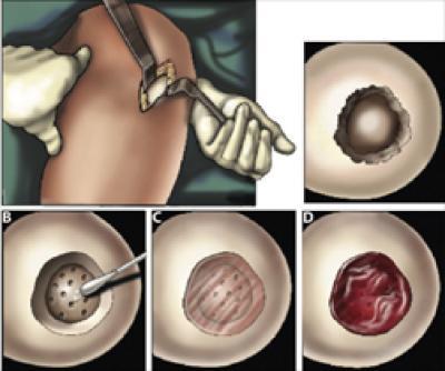 Cartilage Repair Surgery