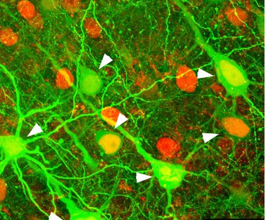 Neuronal Imaging