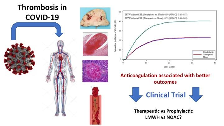 Anticoagulation Associated with Better Outcomes in Hospitalized Patients