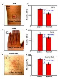 Stiffness variations between unaffected skin and lesion regions.