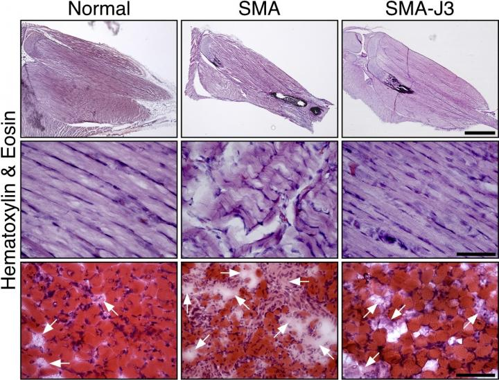 JNK3 Inhibition Reduces Muscle Degeneration in Mice with Spinal Muscular Atrophy