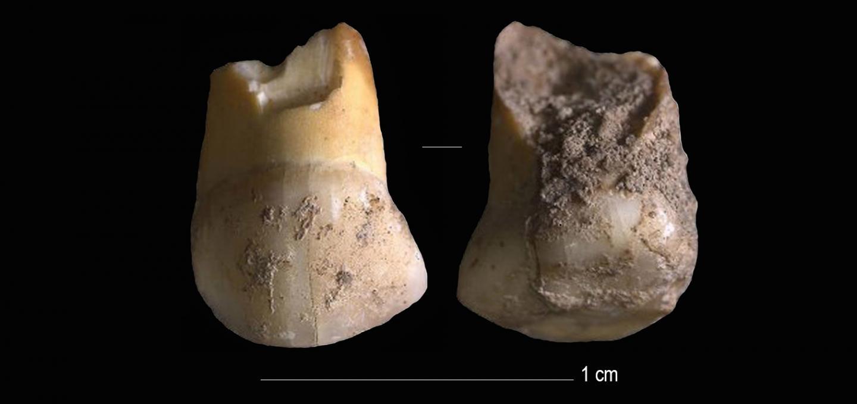 The Milk-Tooth Found in the Vicinity of Riparo Del Broion, Veneto, Italy